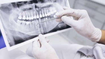 Nuevo tomógrafo dental Cone Beam