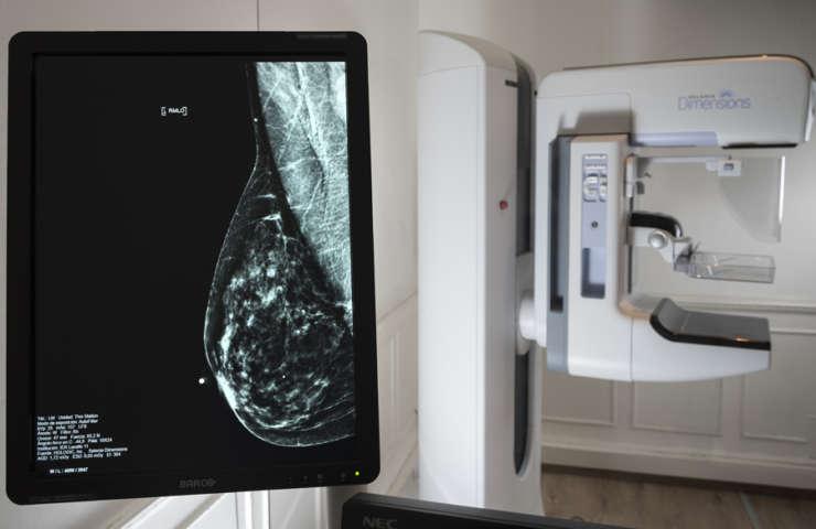 Nuevo mamógrafo digital directo con tomosíntesis