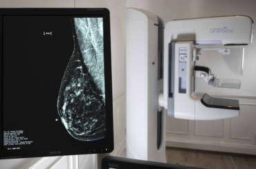 Cáncer de mama y mamografía digital directa con tomosíntesis