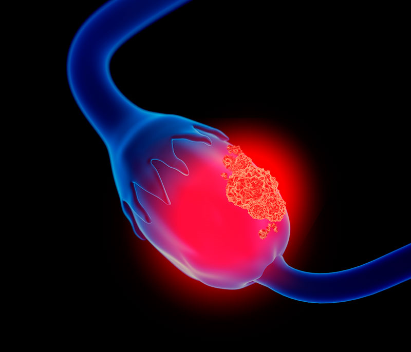 8 de Mayo – Día Mundial del Cáncer de Ovario