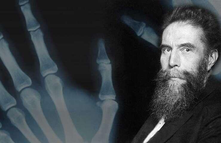 125 Años de la Radiología